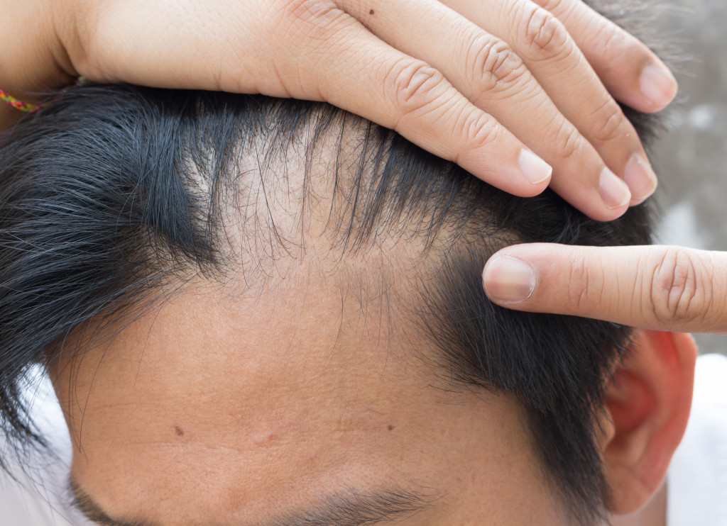 man loosing hair